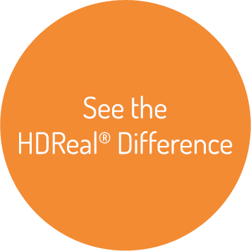 See the HDReal® Difference