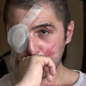 Giuseppe Morgante: pronto un altro caso Pezzulo?