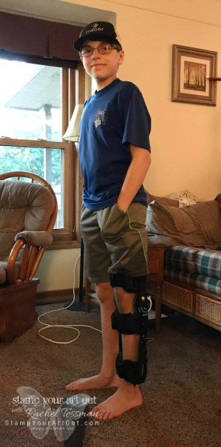 Nicholas was moved into a new brace. His knee is healing well!…#stampyourartout #stampinup - Stampin' Up!® - Stamp Your Art Out! www.stampyourartout.com
