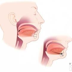 Health Tongue Diagram Epiphone Les Paul Wiring Genioglossus Advancement | Stanford Care