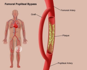 Femoral Popliteal Bypass (Fem-Pop Bypass): During ...