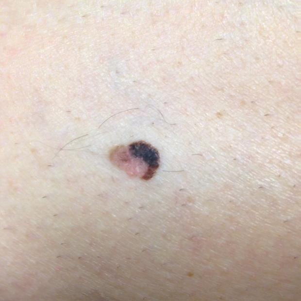 Lesion Example Primary