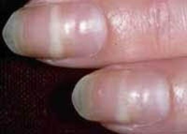 The Hand Examination  Stanford Medicine 25  Stanford Medicine
