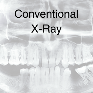 Conventional X-Ray