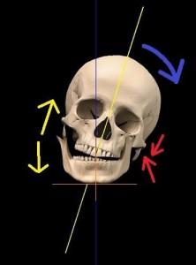craniosx1-222x300