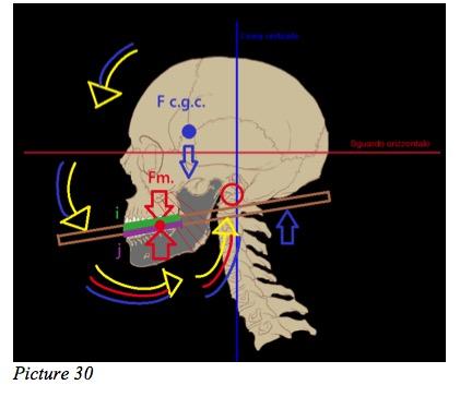 Skull mechanism