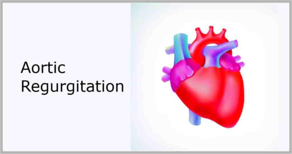 aortic regurgitation murmur