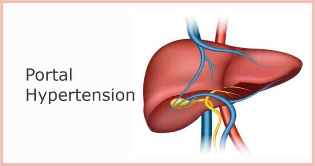 hemorrhoids portal hypertension