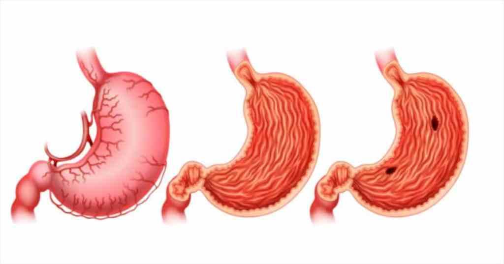 ulcerative colitis and hemorrhoids