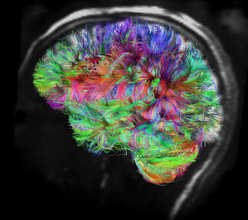 content_c1_Image_Courtesy_of_Human_Connectome_Project._MRI_Scan_of_Human_Brain.jpg
