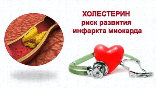 Холестерин - риск развития инфаркта