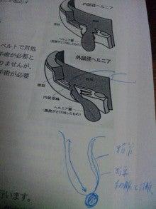 陰嚢水腫(いんのうすいしゅ) <入院前・手術説明>|wo-maw にっき