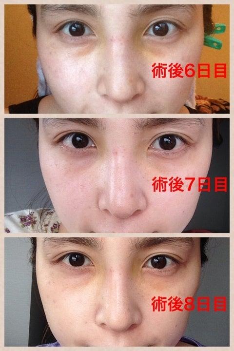 【術後6日目〜8日目】鼻中隔延長,隆鼻術,眉間プロテーゼ|渡部いずみ『たまらなく挑発的』 Powered by Ameba