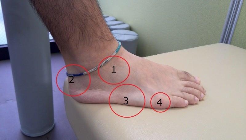 スポーツでよく起こる傷害8 かかとの痛み アキレス腱下滑液 ...
