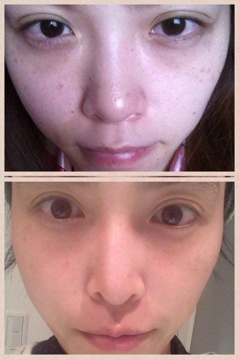 【6ヶ月経過】鼻中隔延長,隆鼻術,眉間プロテーゼ|渡部いずみ『たまらなく挑発的』 Powered by Ameba