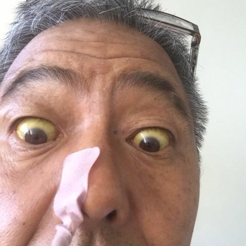 黃疸の色の変化   オタンコナス新井の悪性腫瘍闘病記録ブログ