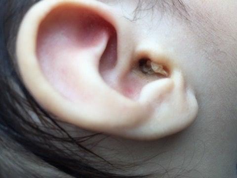 耳 の 入り口 が 痛い