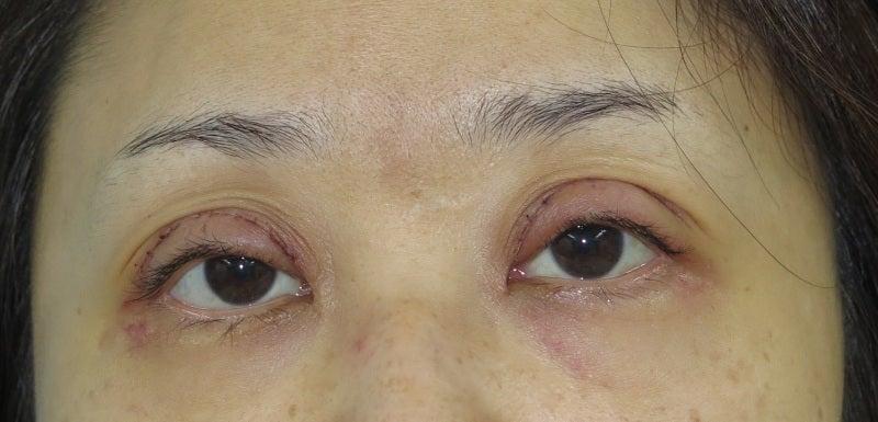 眼瞼下垂の腫れと傷の経過。 | 山本クリニック院長 ドクトル山本ブログ