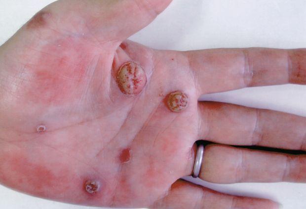 日本國內で梅毒患者が急増中 【閲覧注意】畫像有り | 毘沙門天の隠れ家