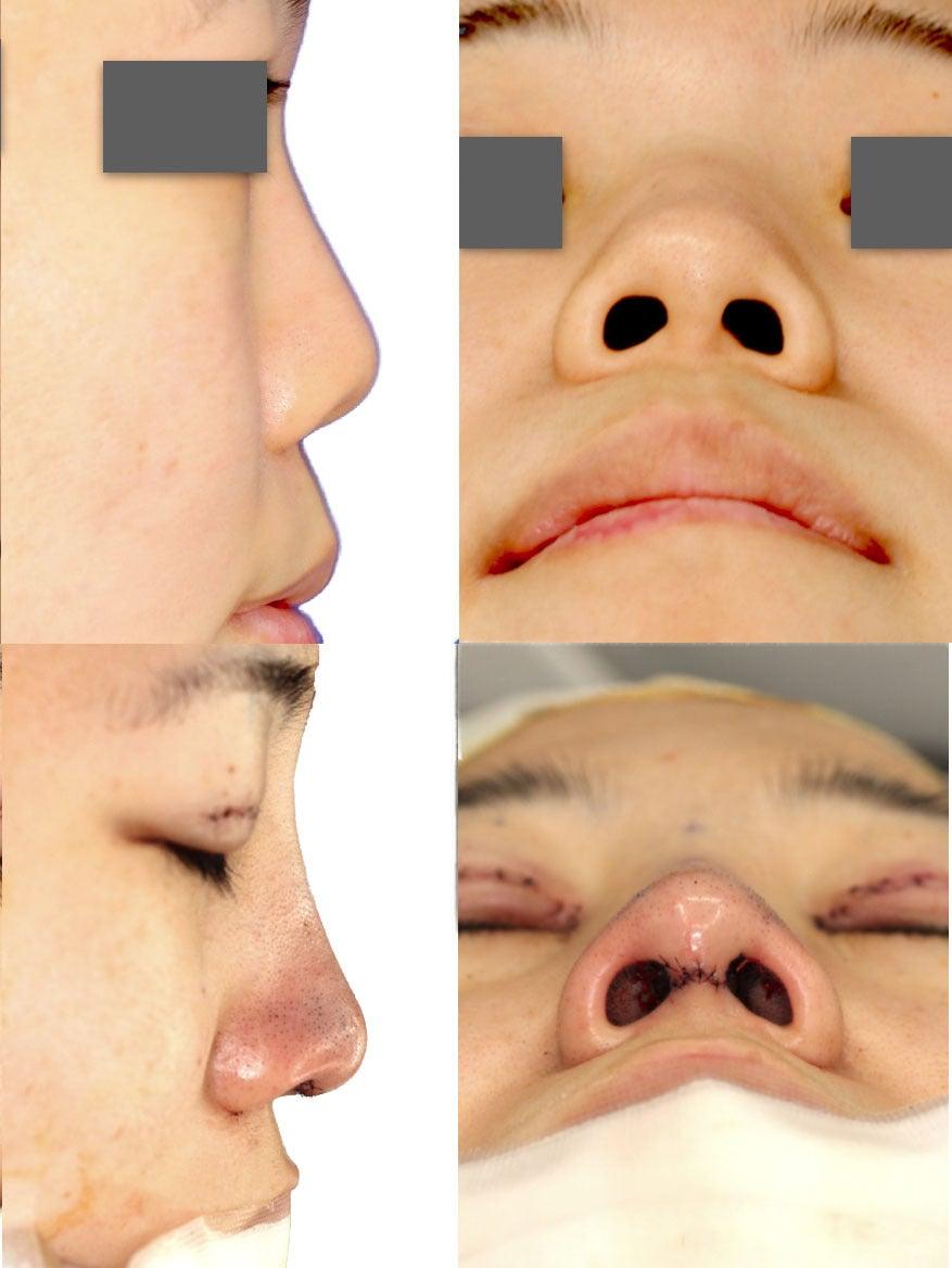 ︎癥例レポNo.35 ︎東京でもお鼻の手術♪鼻中隔延長と目の手術☆ | 本気でお顔をキレイにする美容形成外科 ...