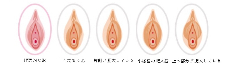 Images of 大陰唇 - JapaneseClass.jp