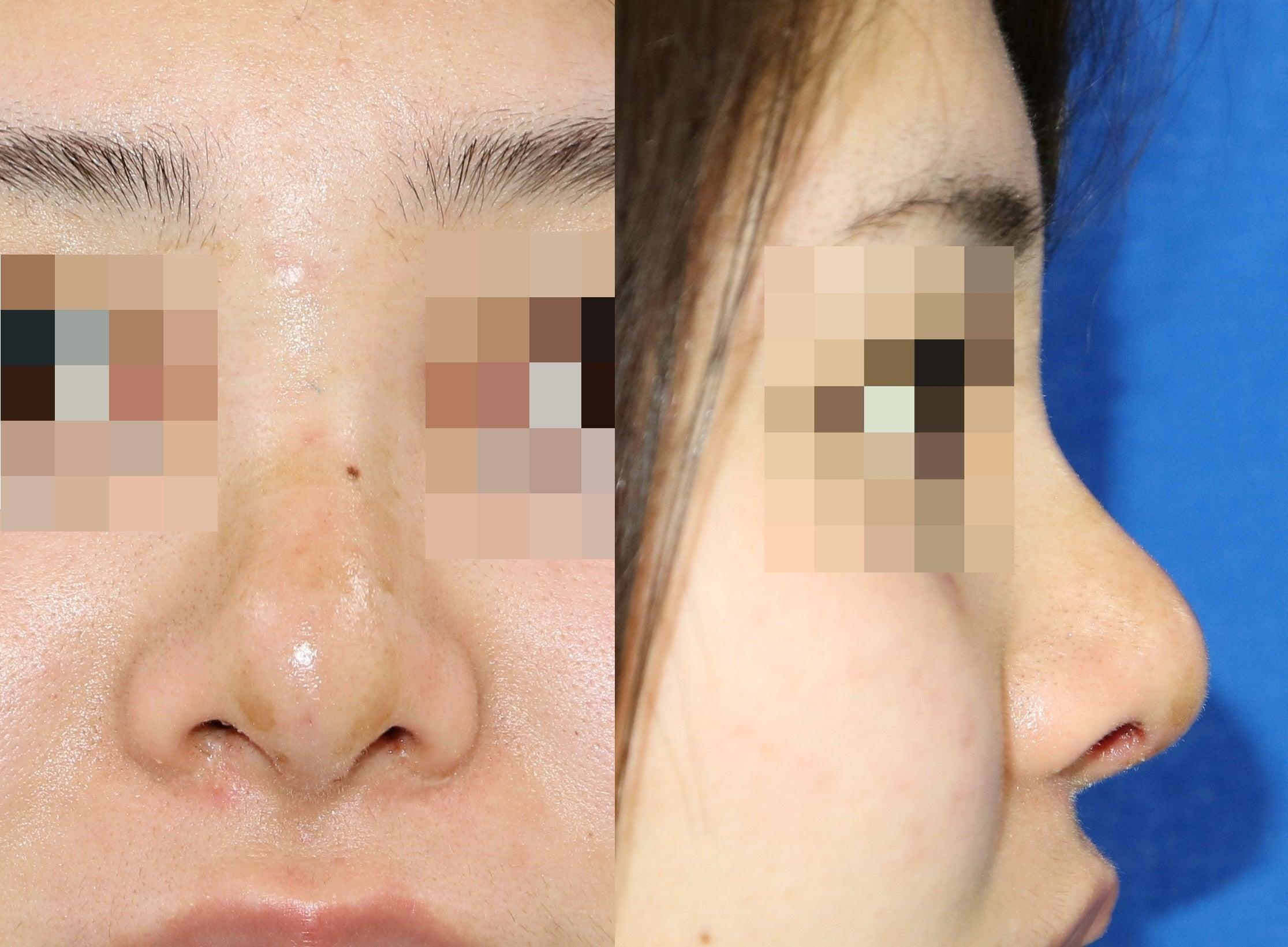 同じ術式でもこんなに違う!!他院シリコン(プロテーゼ)隆鼻術を修正する!! | 山本クリニック院長 ...