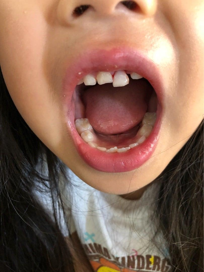 前歯が抜けた! | HIROMI's HAPPY LIFE