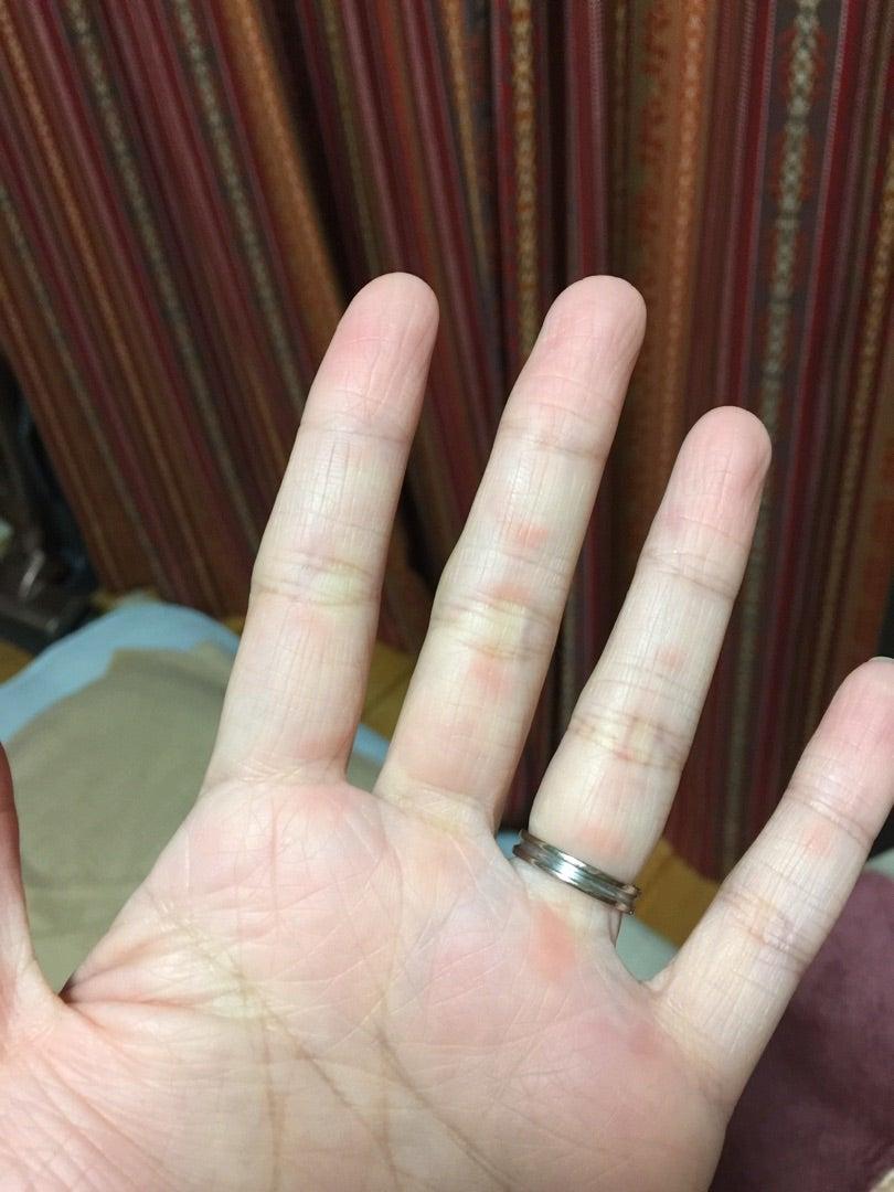 私の膠原病 皮膚筋炎の初期癥狀。。。 | 膠原病 皮膚筋炎(抗MDA5抗體)で闘病中です。