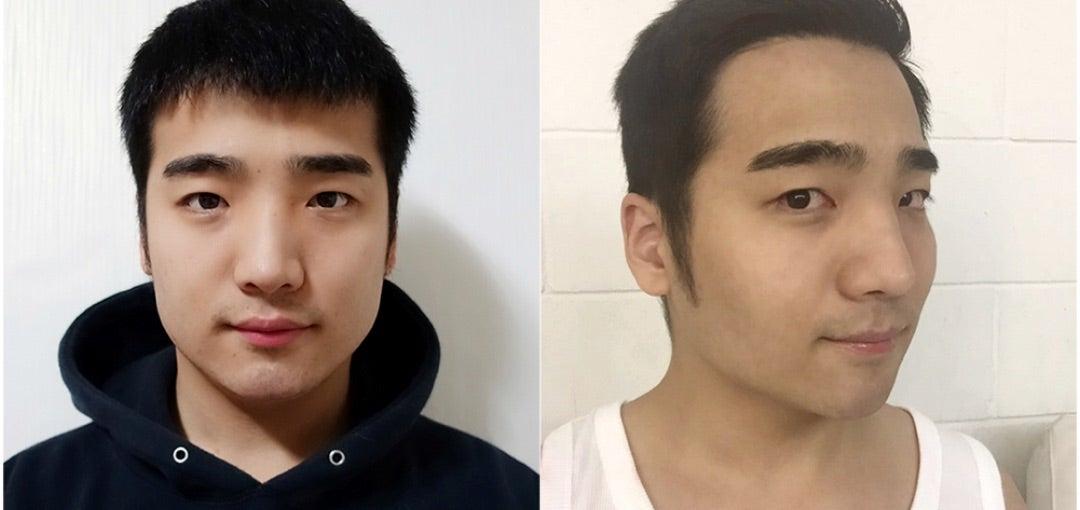 【韓國美容整形】メンズ整形!!男性鼻整形について | 韓國整形通訳サポートBiJOO(ビジュー)