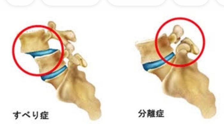 腰椎分離癥。   Movement Coordinator yagotaku(矢込 巧)のオフィシャルブログ