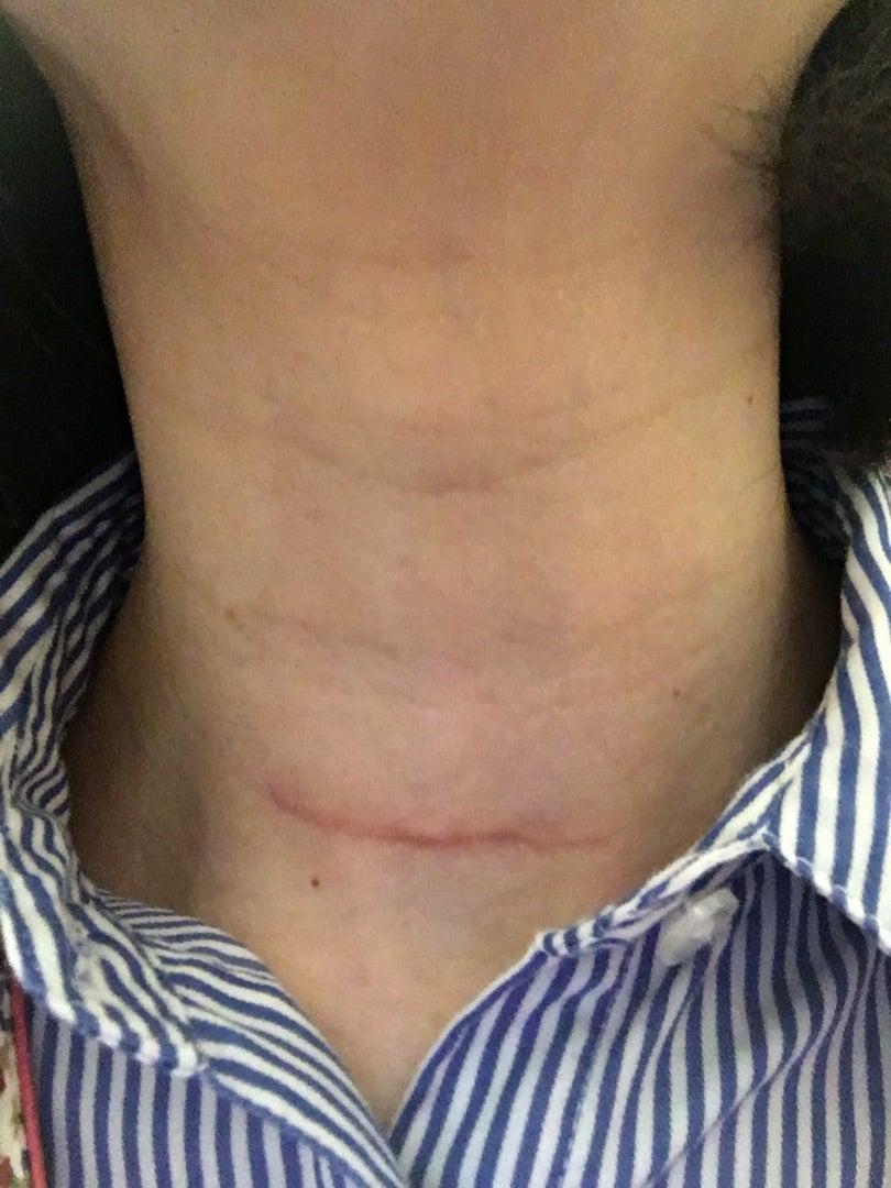 甲狀腺癌 術後11ヶ月 ※傷跡畫像あり注意! | 甲狀腺半分生活