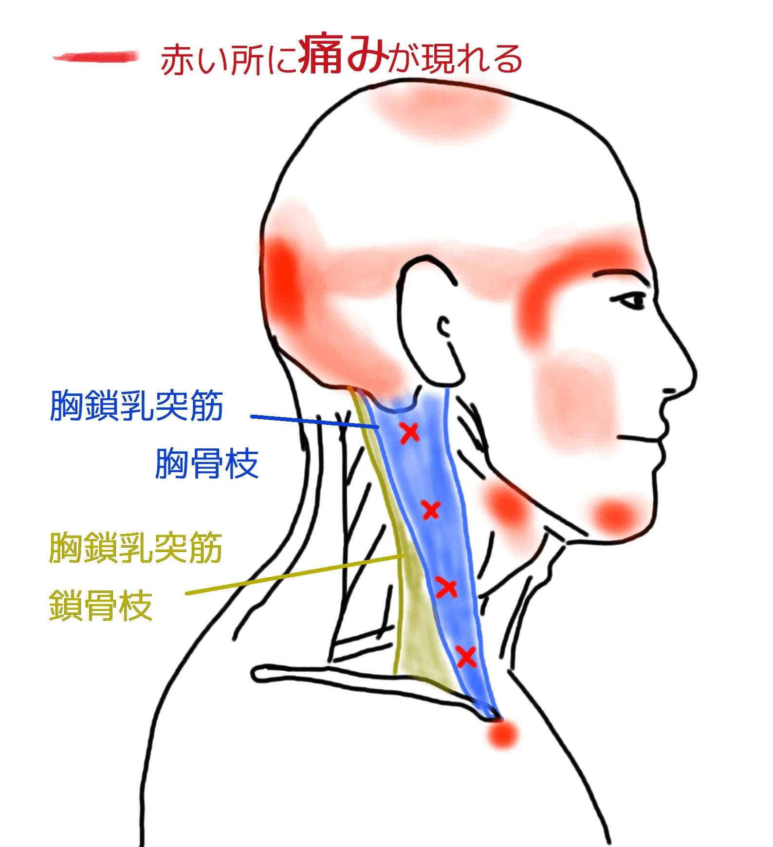 胸鎖乳突筋のはり治療 加古川市 | 兵庫県 加古川市 はり灸 ...
