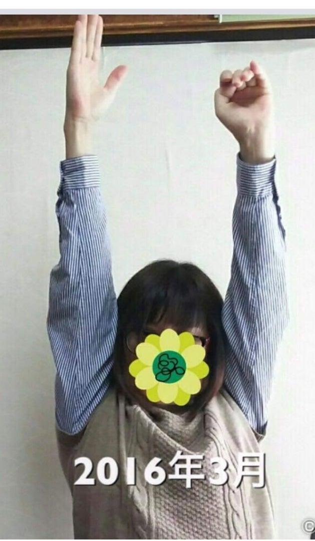 回復してる~\(^-^)/ | 片麻痺生活 私の右手は魔法の手