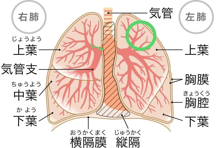 3度目のがん告知 肺転移③   大腸ガン闘病記