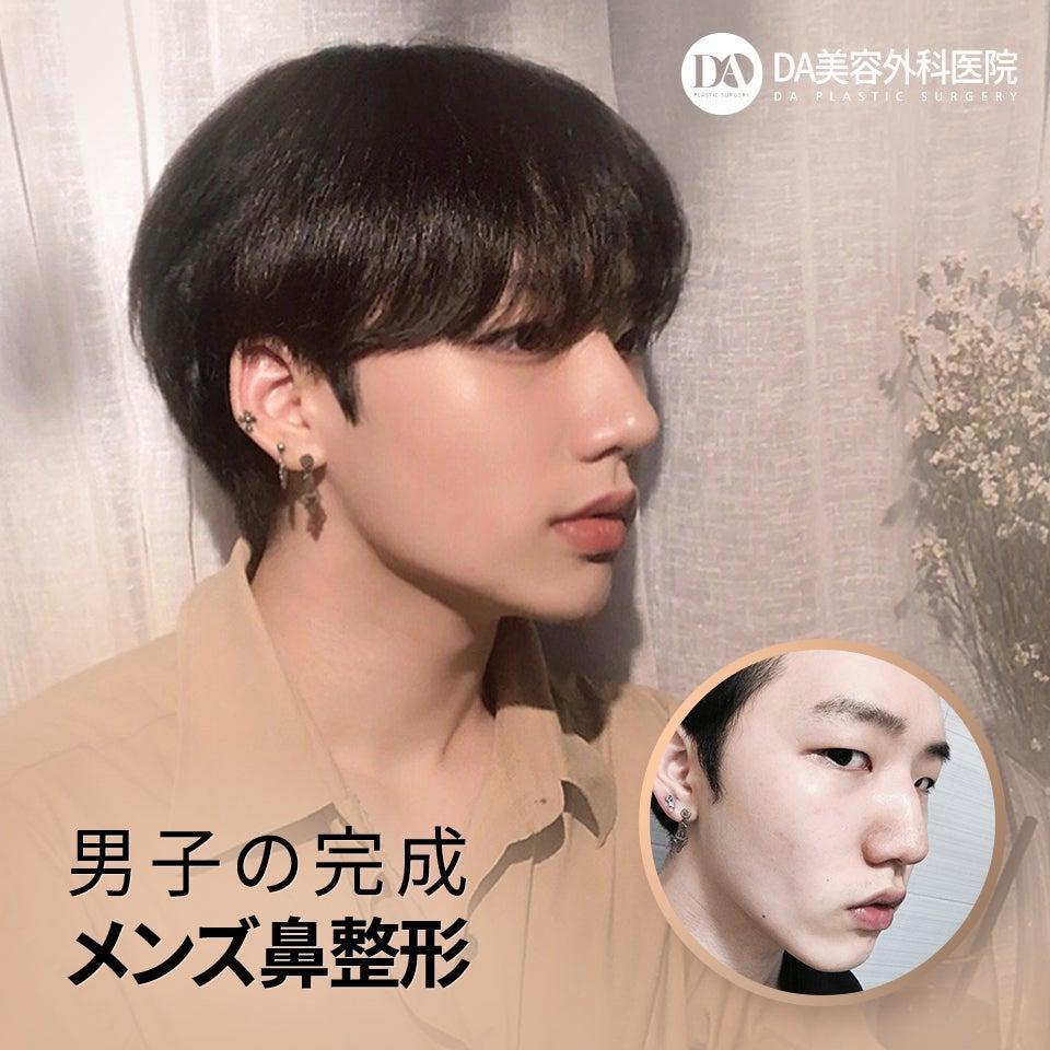 DA美容外科・鼻整形~男性鼻癥例~ | 韓國整形DA美容外科・皮膚科