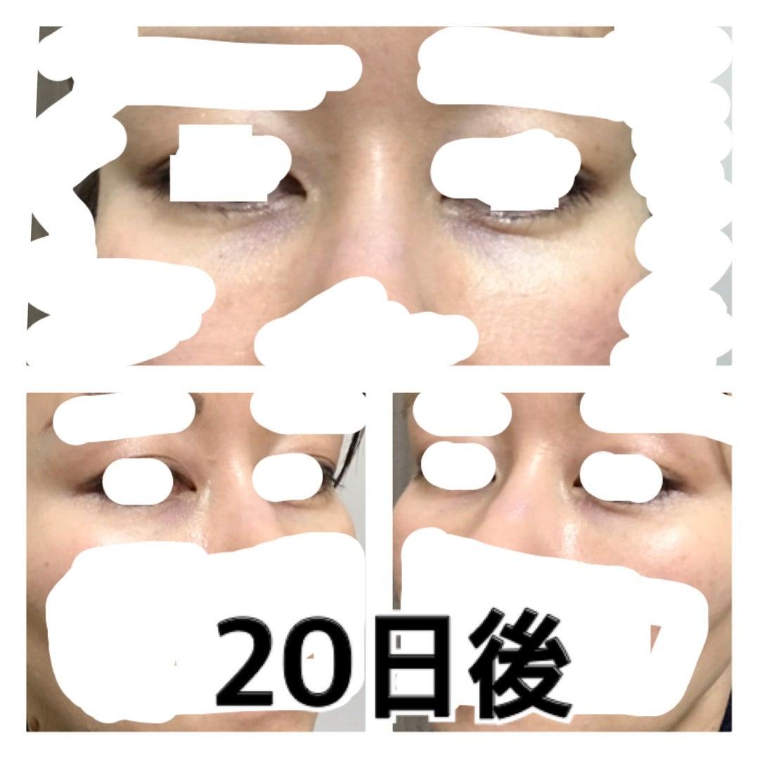 目の下ヒアルロン酸注射20日後とスキンタイト | アンチ ...