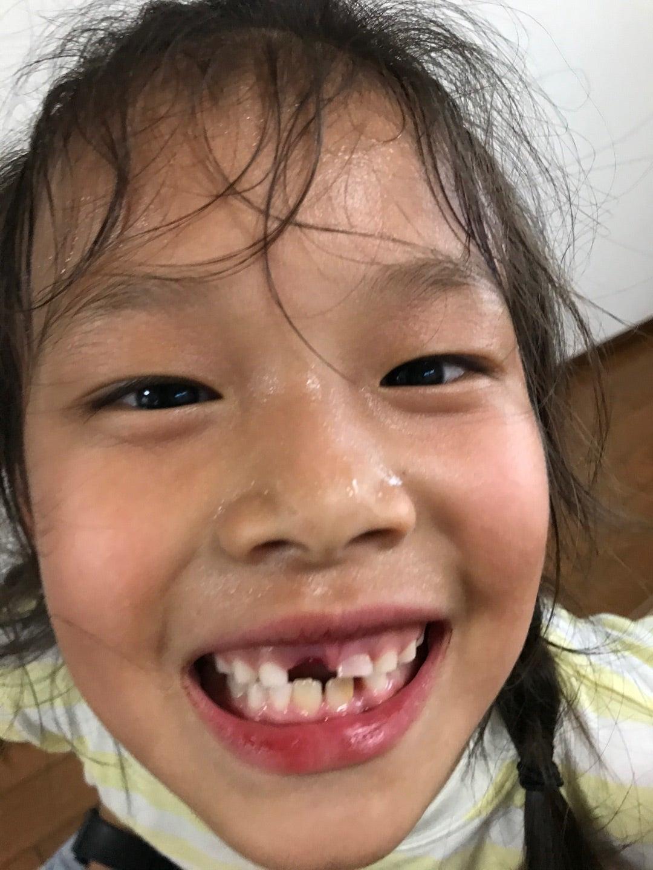 歯が抜けた | nai.a