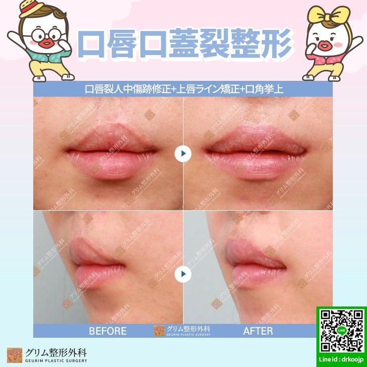 韓國美容整形ー口唇口蓋裂の唇整形! | 韓國での整形手術は ...