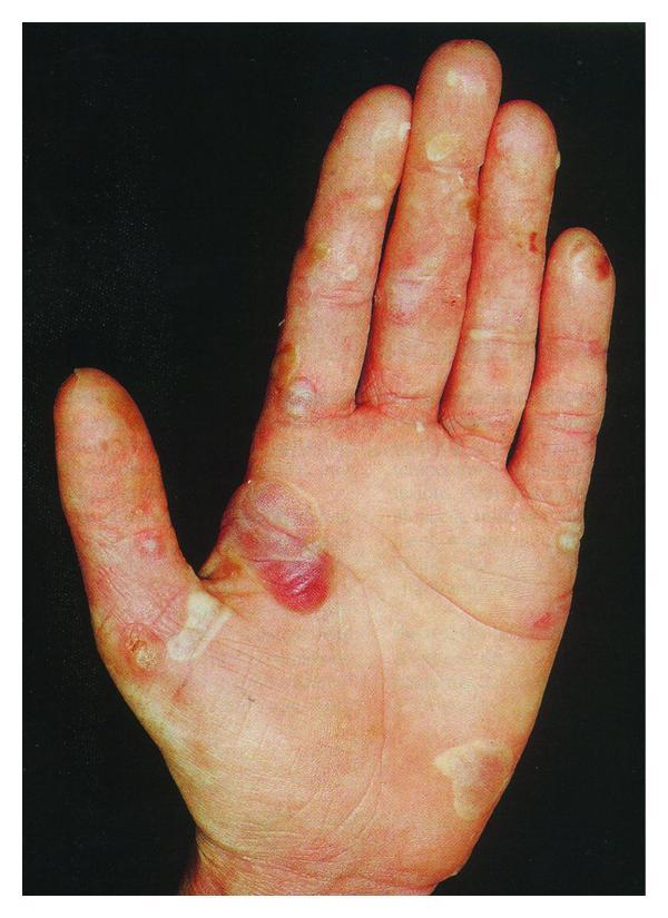 Influence of Skin Diseases on Fingerprint Recognition