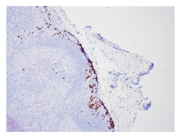 Radiographically Negative. Asymptomatic. Sentinel Lymph Node Positive Cutaneous T-Cell Lymphoma in a 3-Year-Old Male: A Case Report