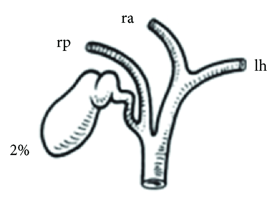 Repair of a Post-Hepatectomy Posterior Sectoral Duct