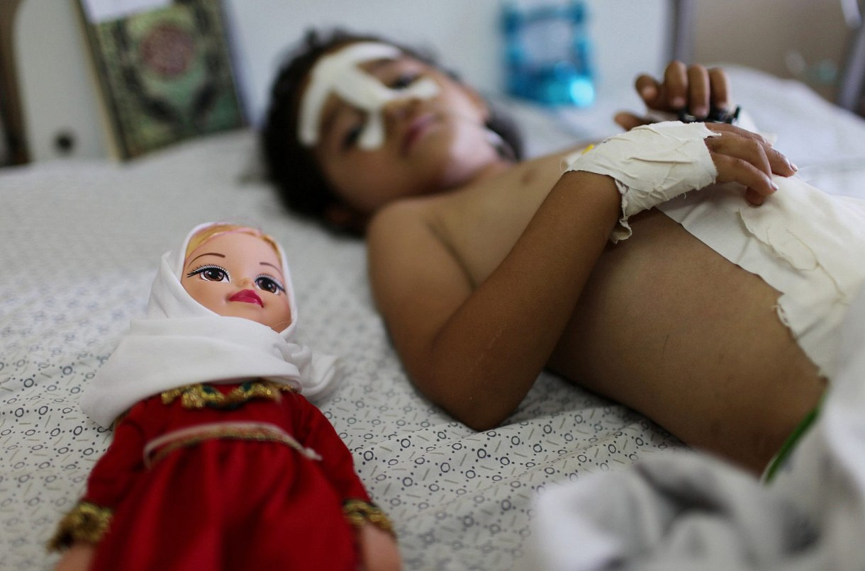 Four-year-old Palestinian girl Shayma Al-Masri, who was wounded in an Israeli air strike that killed her mother and two of her siblings, lies next to her doll as she receives hospital treatment in Gaza City, July 14, 2014. (Emad Nassar/Flash90)