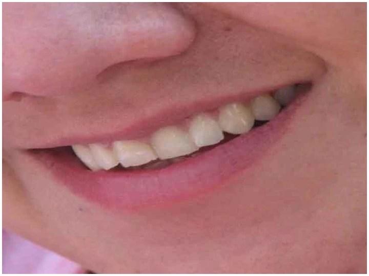 दांत पीले क्यों पड़ जाते हैं और रोकने के लिए क्या हैं उपाय, जानिए इस तरह बनाएं ज्यादा सफेद और आकर्षक