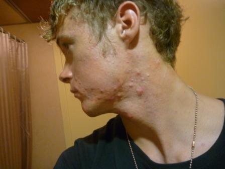 Member pictures - Jawline and face - jawline with cysts ...