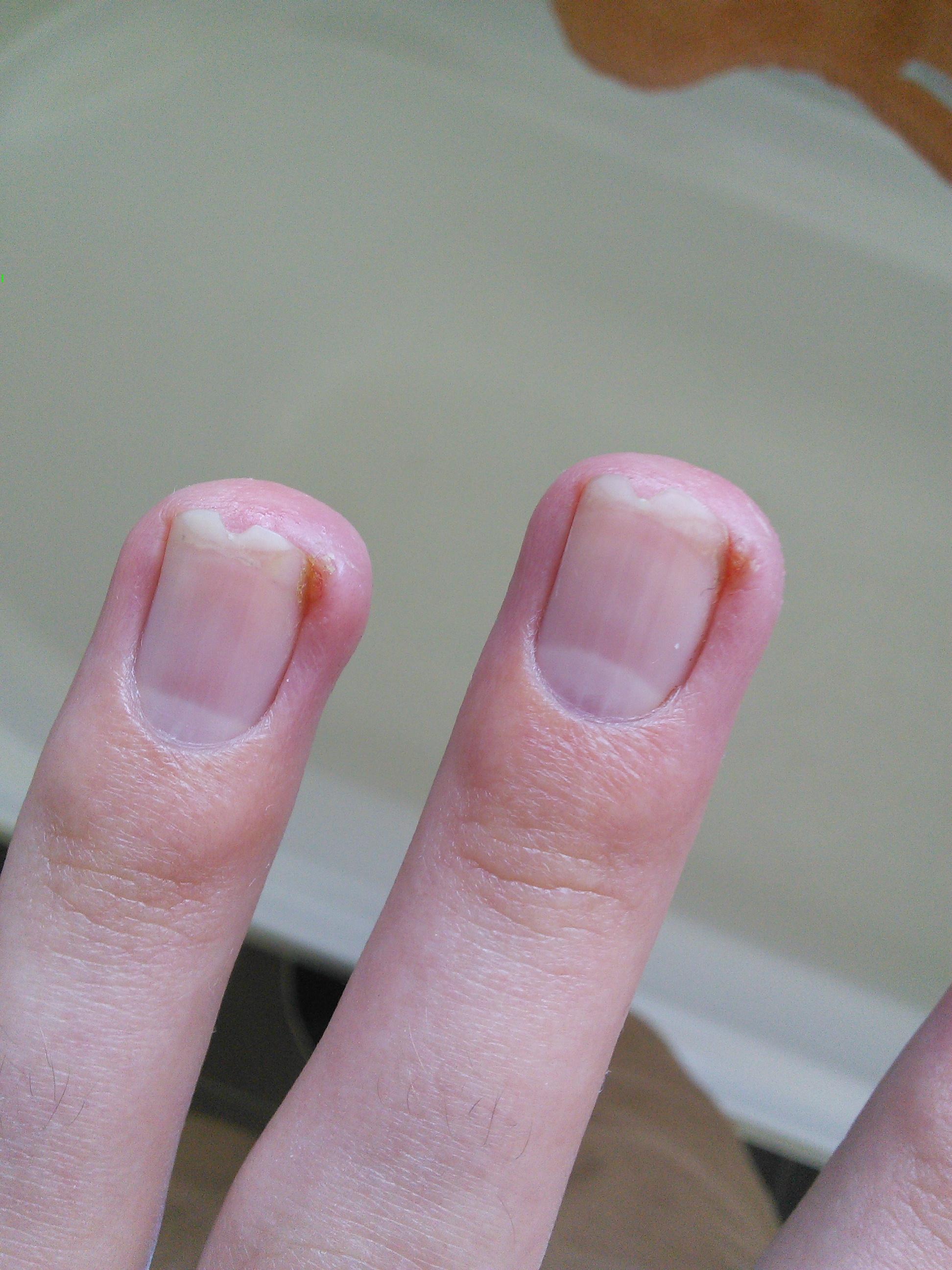 INGROWN FINGERNAIL GRANULATION TISSUE MONTH 4 OF 8 ACCUTANE  Prescription acne medications