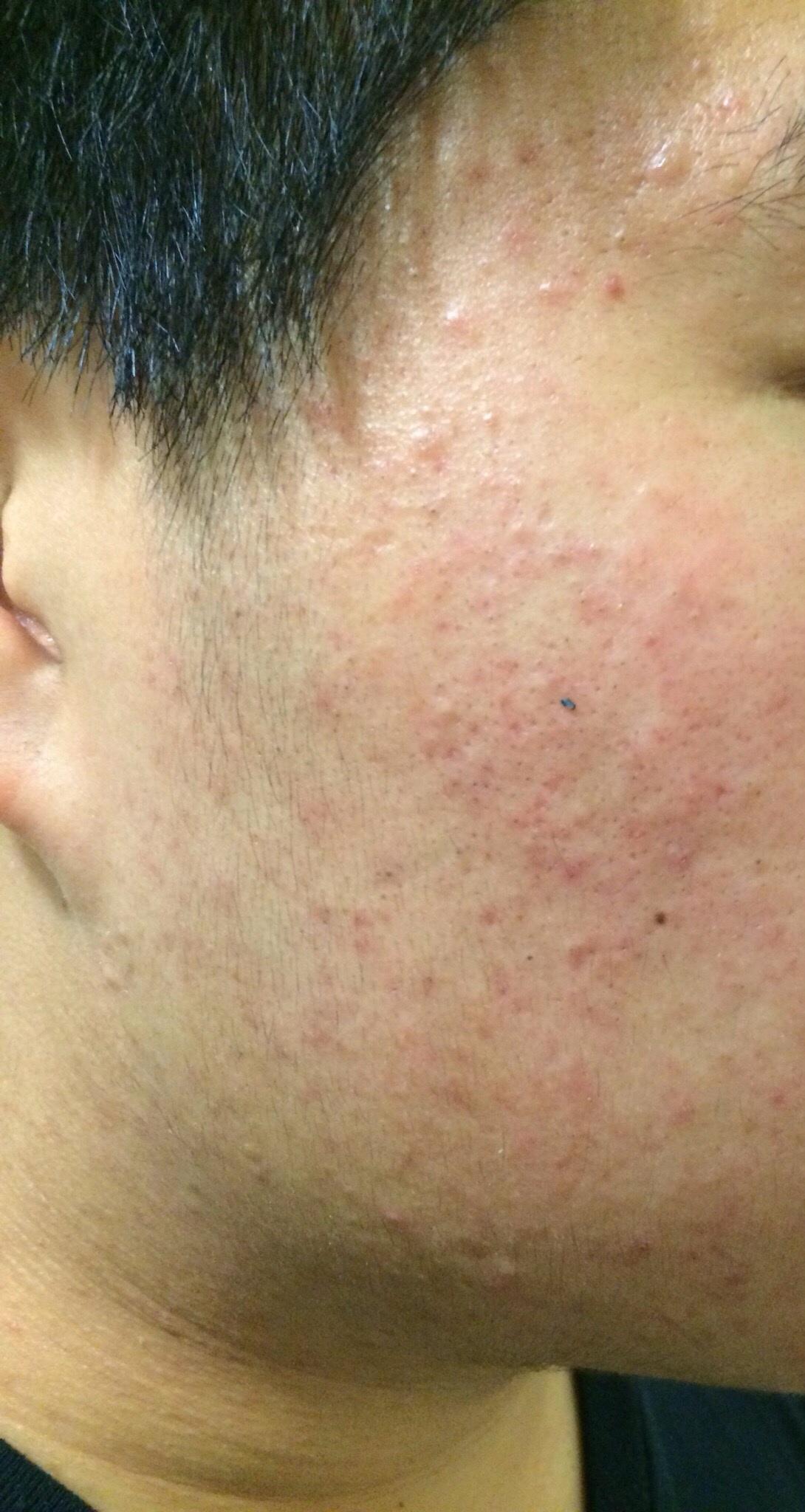 Malassezia Folliculitis General Acne Discussion By