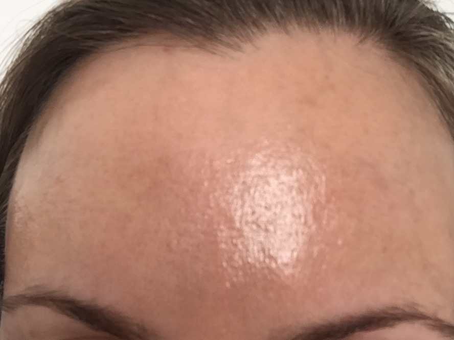 Tiny bumps that dont go away It may be PF  Oily skin