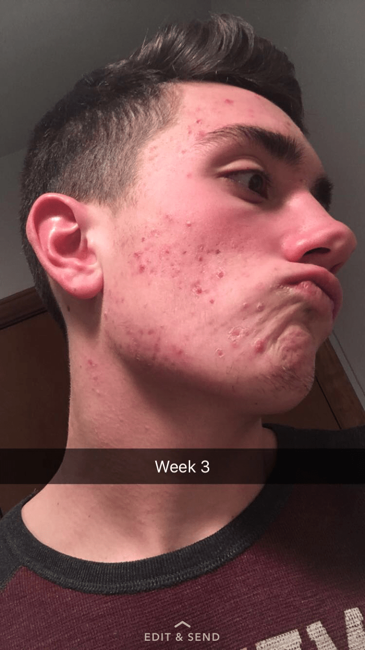 Accutane 25 months in pictures please comment  need advice  Hyperpigmentation  red