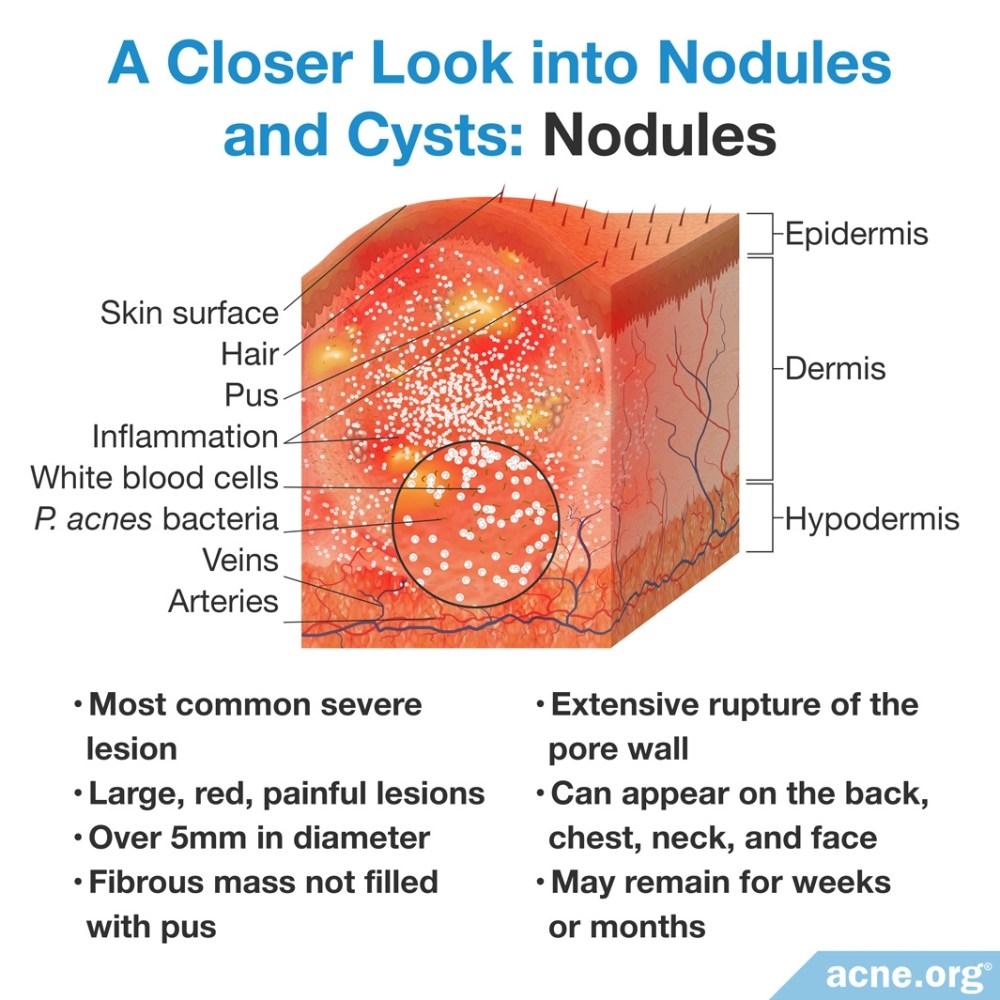 medium resolution of cyst pimple diagram wiring diagram centre cyst pimple diagram