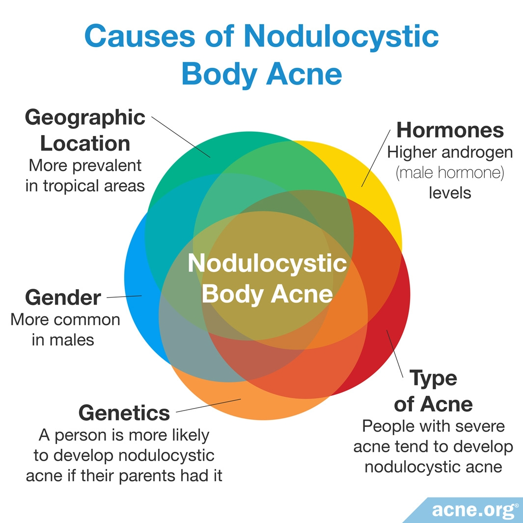 hight resolution of causes of nodulocystic acne